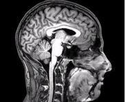 Brain Scan.jpg